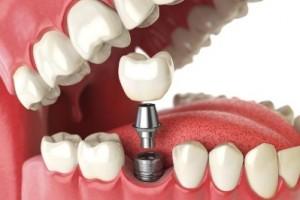 大连齿医生科普做种植牙有年龄限制吗
